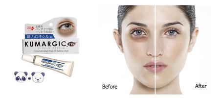 Kem đặc trị thâm quầng mắt hiệu quả tuyệt đối đến từ NHật