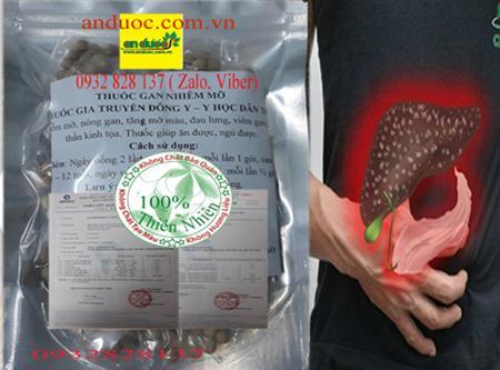 Thuốc trị gan nhiễm mỡ 100% thảo dược quý, hiệu quả